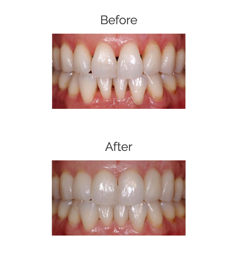 How to remove black triangles after braces